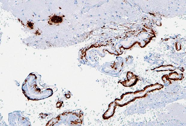 Амилоидные бляшки в коре головного мозга