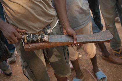 Подросток пытался сделать себе обрезание при помощи мачете и попал в больницу