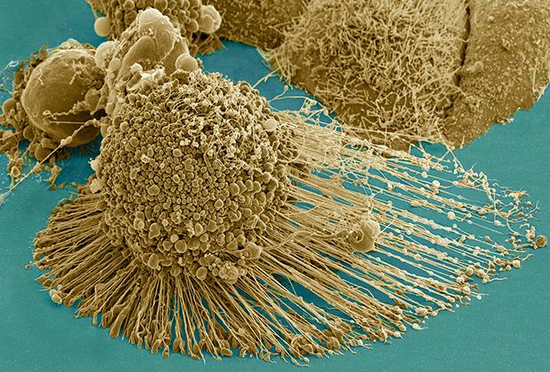 Раковые клетки HeLa
