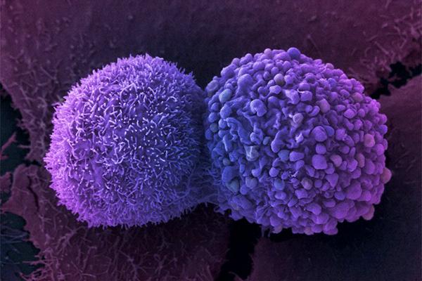Ученые: Заболевание раком восновной массе случаев нельзя предотвратить