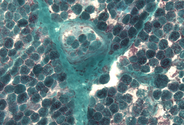 Мышечная ткань при синдроме Лея (заметны рваные красные волокна)