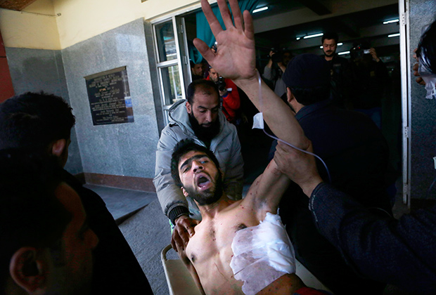 Кашмирец, раненный во время протестов на выборах