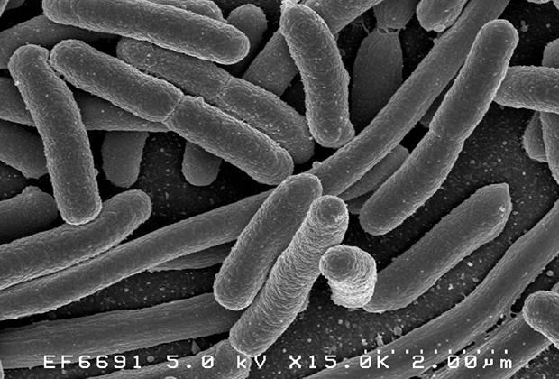 Кишечная палочка Escherichia coli