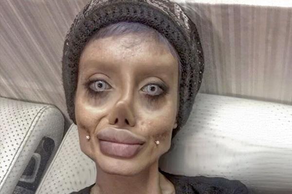 Иранка пережила 50 операций в попытке стать Анджелиной Джоли