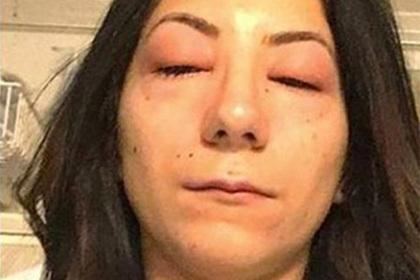 После последнего секса опухают глаза