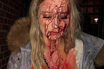 В «мигрантской столице» Швеции женщину избили бутылкой до крови за отказ в сексе