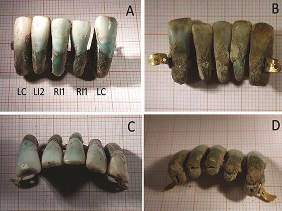 Средневековые европейские зубные протезы, Италия
