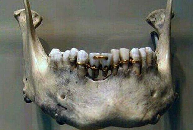 Мост с донорскими зубами