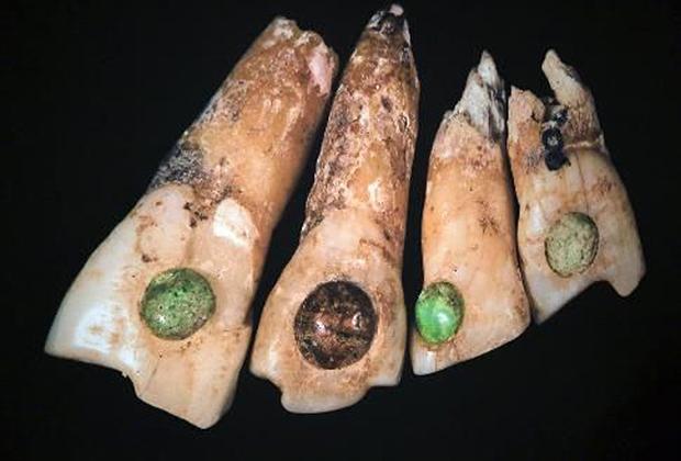 Инкрустированные зубы майя