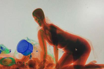 Похождения нервной женщины внутри рентгена попали на видео