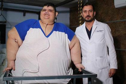 Самый толстый человек похудел