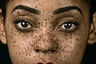 Портрет женщины с веснушками, снятый в 2017 году.  <br> <br> Этот снимок был сделан в студии с использованием двух разных источников мягкого света. «Модель привлекла мое внимание на мероприятии, и мне пришлось привести ее в студию, чтобы я мог запечатлеть каждую веснушку на ее лице», — сказал фотограф. Шорт-лист открытого конкурса в категории «Портрет».