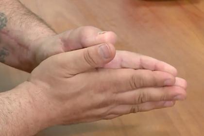 Американец отрезал палец на руке и заменил его пальцем ноги