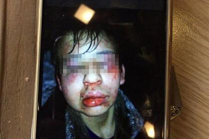 В Покрове жестоко избили школьника-инвалида