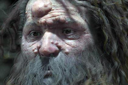 Древний человек оказался покрыт опухолями