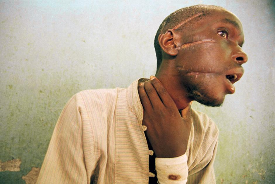 26-летний руандиец Ньябимана выжил после нескольких ударов мачете