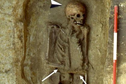 В старинной могиле нашли первого в мире киборга