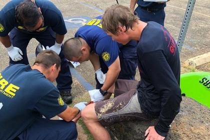 Американец пережил нападения акулы, медведя и змеи