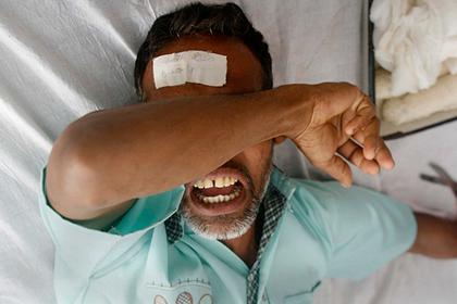 Врач перепутал пациентов и продырявил ногу индийцу с травмой головы