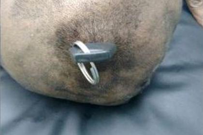 Индиец вогнал пятисантиметровый ключ в череп и остался жив