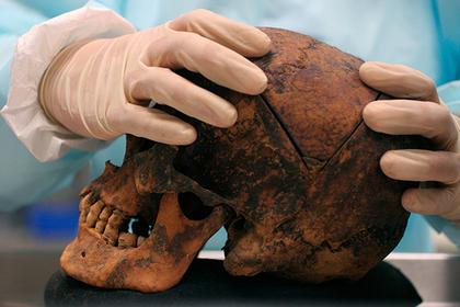 В зубах древнего человека нашли смертоносный вирус