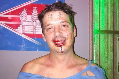 Китайцы выбили туристу зубы за татуировки на лбу