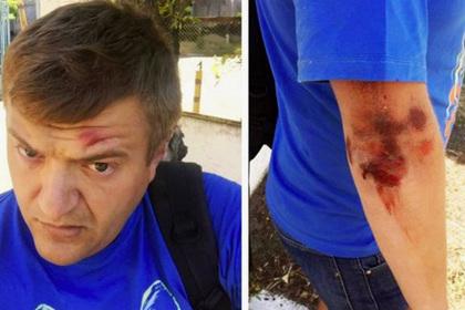 Подсчитаны избитые и пострадавшие на Украине журналисты