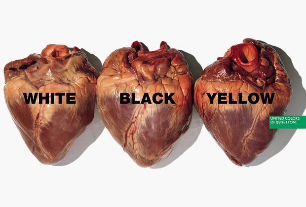 Реклама с изображением изъятых из тел сердец с надписями White, Black, Yellow («Белое, Черное, Желтое») должна была демонстрировать равенство людей вне зависимости от расы: органы выглядят примерно  одинаково. Понять, действительно ли это человеческие сердца, может только врач или биолог, но шокированы были почти все увидевшие плакат. Правда, те, кому довелось увидеть аналогичный плакат с разноцветными гениталиями, возмущались еще громче.