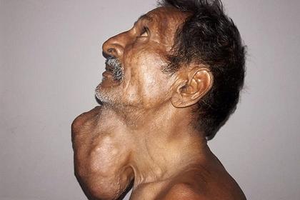 Фермер 20 лет откладывал поход к врачу и заработал опухоль размером с голову