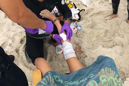 Акулы напали сразу на двух детей на побережье США