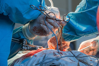 Родственники умершей во время операции пациентки добились освобождения врача