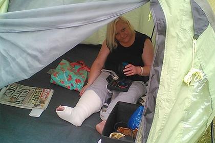 Женщина лишилась ноги из-за пореза при бритье