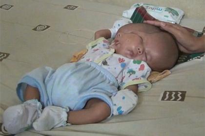 Ребенок с двумя лицами родился в Индонезии