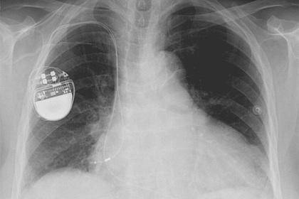 Хакеры нашли способ остановить сердце