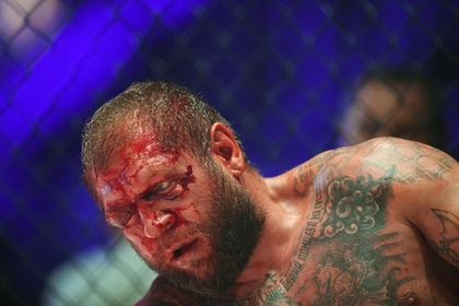 Емельяненко показал разбитое после боя лицо