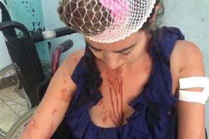 Уборщица побила британскую туристку металлическим столбом за отказ платить