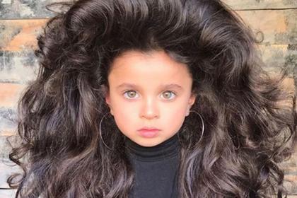 Аномальные волосы принесли славу пятилетнему ребенку
