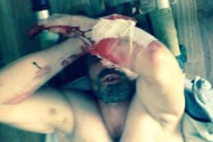 Мужчина ослеп после пыток в полиции и разочаровался в российском правосудии