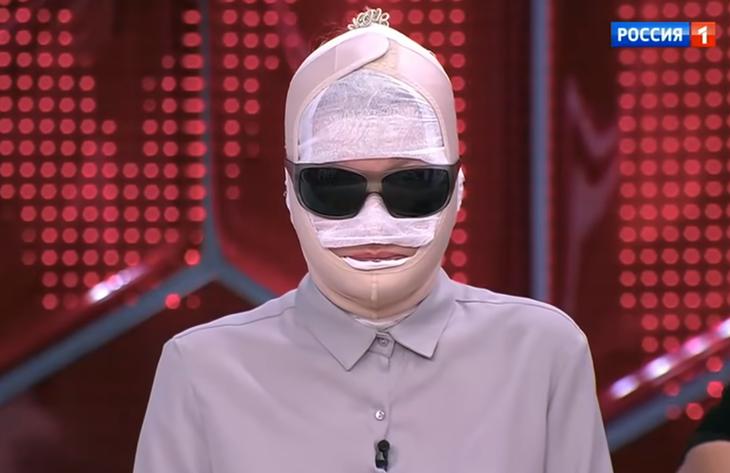 Екатерина Терешкович после пластической операции