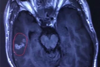 Хирурги извлекли измозга мужчины 10-сантиметрового червя