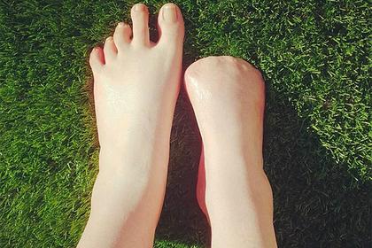 «Рыбий педикюр» лишил австралийку всех пальцев на ноге