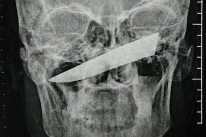 Африканец четверо суток провел с ножом в глазнице и выжил