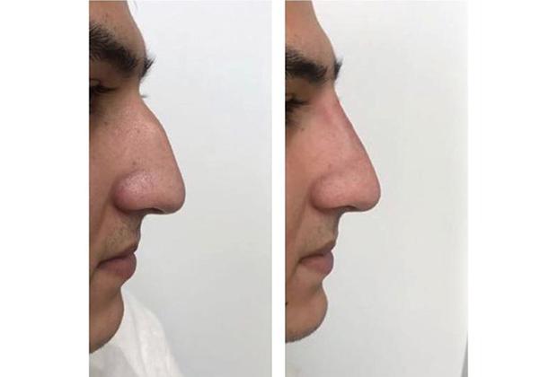 Безоперационная коррекция носа: до процедуры и после