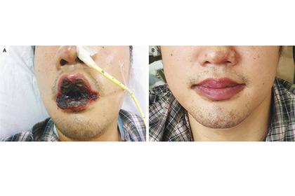 Мужчина пожаловался на кашель и внезапно приобрел почерневшие губы