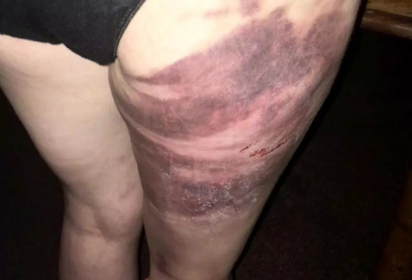 Шестилетняя девочка спасла мать от зверского насилия отца