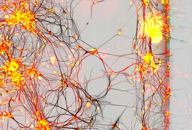 Человеческие нейроны в культуре клеток, выделенных у пациентов с болезнью Паркинсона. Соннам, Южная Корея.