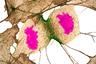 Человеческие фибробласты (клетки соединительной ткани) в момент деления. Фотография заняла 11-е место. Нашвилл, штат Теннесси (США).