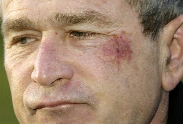 Тот самый фингал, который Джордж Буш получил во время просмотра футбольного матча.