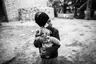 Ране Афганипур из иранской деревни четыре года. Она стала жертвой собственного отца, облившего ее с матерью кислотой. Это случилось, когда женщина потребовала развода после нескольких лет притеснений и агрессии со стороны супруга. Разгневанный муж дождался ночи и окатил семью кислотой, пока те спали. Местами их тела оказались сильно сожжены, а лица обезображены. Мать ослепла, а Рана потеряла один глаз.