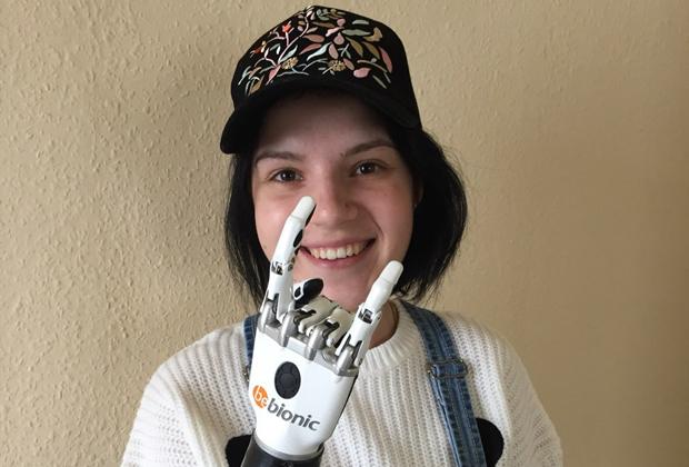 Маргарита Грачева с протезом кисти